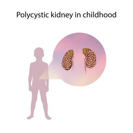 Polycystic kidney in childhood. Medical anatomy illustration. Фото со стока