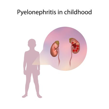 Pyelonephritis in childhood. Kidney infection. Medical anatomy illustration. Фото со стока