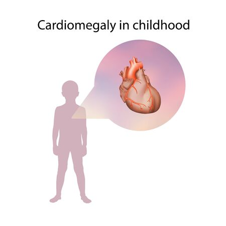 Cardiomegaly in childhood. Enlarged heart muscle. Medical anatomy illustration. Фото со стока
