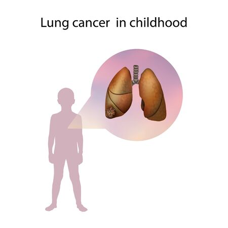 Lung cancer in childhood. Medical anatomy illustration.