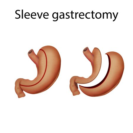 Sleeve gastrectomy. Stomach surgery. Before and after. Medical anatomy illustration.