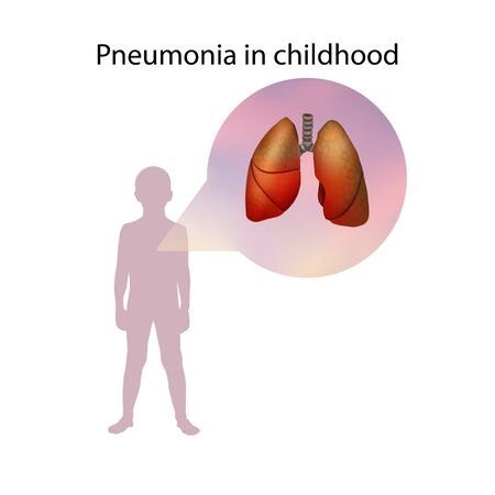 Pneumonia in childhood. Lungs inflammation. Medical anatomy illustration.