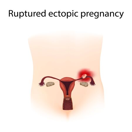 Ruptured ectopic pregnancy. Body. Growing fetus ruptures fallopian tube. Medical anatomy illustration.