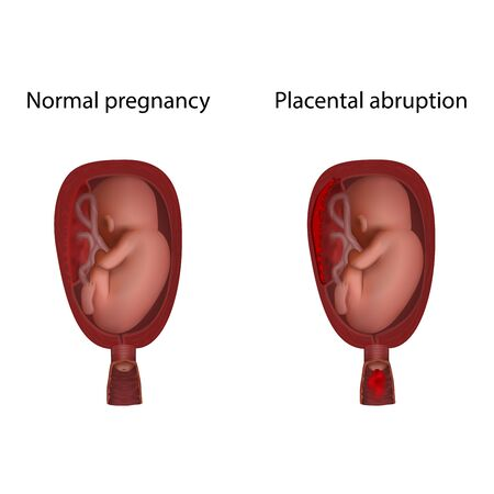 Placental abruption and normal. Fetus in uterus, womb, placenta, umbilical cord. Hi-risk pregnancy complications. Medical anatomy illustration.