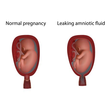 Normal and leaking amniotic fluid. Cervical weakness. Fetus in uterus, womb, placenta, umbilical cord. Hi-risk pregnancy complications. Medical anatomy illustration.