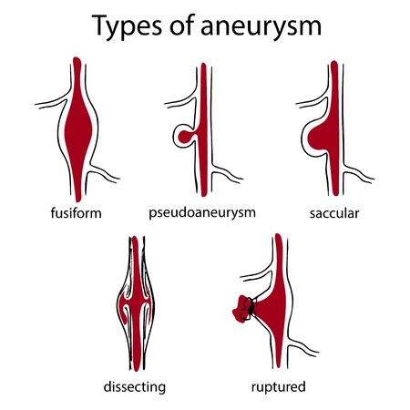 Types of aneurysm. Fusiform, pseudoaneurysm, saccular, dissecting, ruptured. Simple medical anatomy illustration.