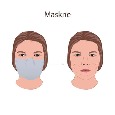 Maskne. Wearing mask problems. Young woman face with acne.