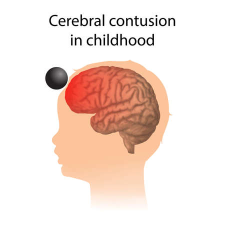 TBI. Cerebral contusion in childhood. Kid, child head damage. Vector Illustration