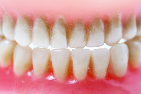 dentin: old dirty dental plate of old man or woman