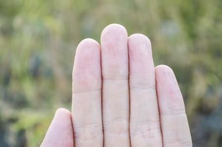 fingers: fingers