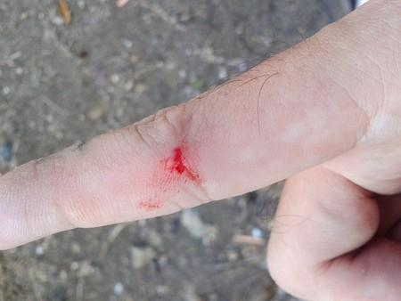 herida: La herida en el dedo