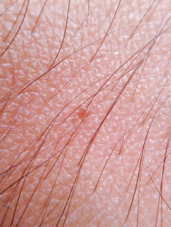 background of human skin Reklamní fotografie