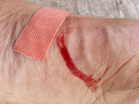 dry blood on foot skin Zdjęcie Seryjne