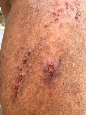harming: wound on his leg