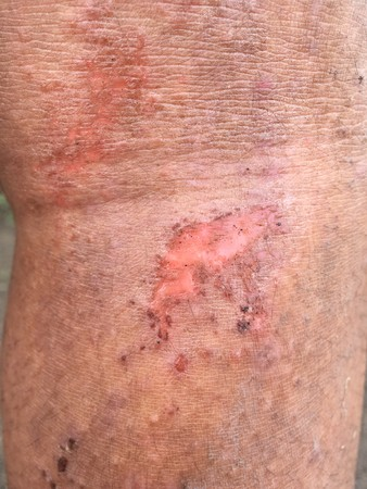 wound on his leg