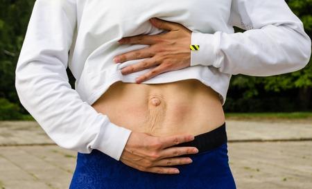 Diastasis recti Frau Abdomen Divergenz der Muskeln des Bauches nach Schwangerschaft und Geburt. Standard-Bild - 83364500