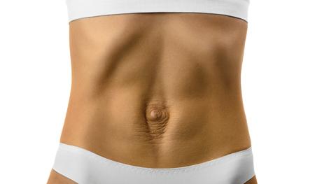 Diastasis recti. Dames buik divergentie van de spieren van de buik na zwangerschap en bevalling.