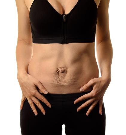 Diastasis recti. Dames buik divergentie van de spieren van de buik na zwangerschap en bevalling. Stockfoto - 95244120