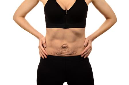 Diastasi riattiva Womans addome divergenza dei muscoli dell'addome dopo la gravidanza e il parto. Pelle flaccida sul ventre.