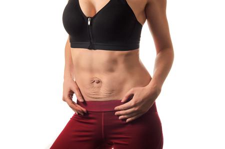 Diastasis Recta. El abdomen de la mujer divergencia de los músculos del abdomen después del embarazo y el parto.