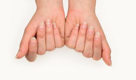 Leukonychia. Vrouwenspijkers met witte vlekken die op wit worden geïsoleerd. Leuconychia partialis punctata of melknagels. Stockfoto - 96533249