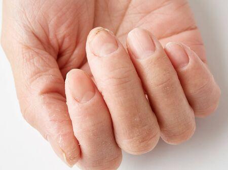 Hand roughness, detergent rash, onychomycosis (tsumehakusen) image