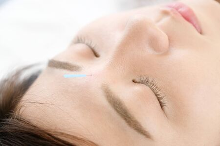 Up of a woman who is struck with acupuncture in the face in acupuncture clinic Banque d'images