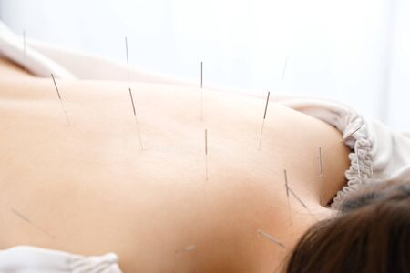 Woman stabbed in the back with needle in bright acupuncture clinic