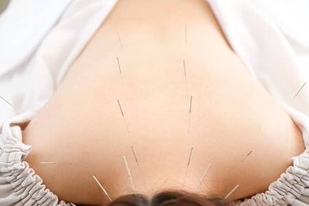 Woman stabbed in the back with needle in bright acupuncture clinic 版權商用圖片 - 138018183