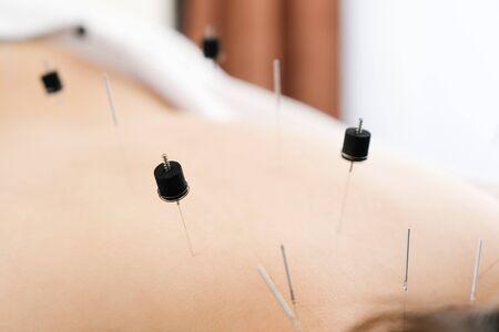 Woman stabbed in the back with needle in bright acupuncture clinic 版權商用圖片 - 138030173