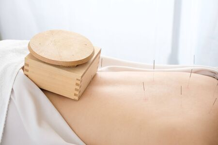 A box bowl placed on a woman's waist in a bright acupuncture clinic 版權商用圖片 - 138030217