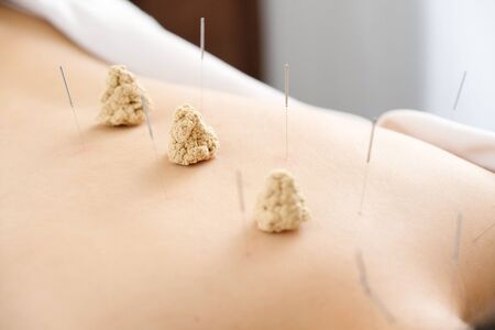 Needles and porridge stuck in a womans back in a bright acupuncture clinic