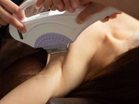 Light hair loss of womens side in SHR hair removal device