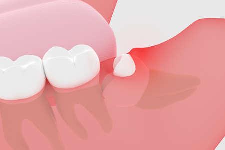 Partially exposed wisdom tooth 3D rendering Standard-Bild