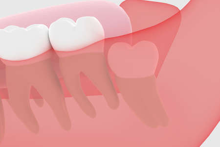 Wisdom tooth 3D rendering buried in the gums
