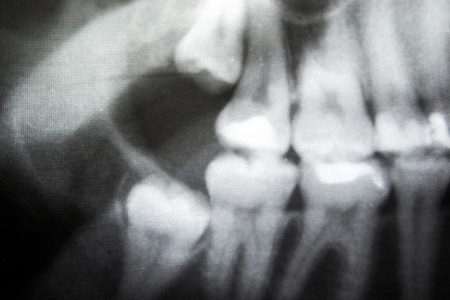 X-Ray of problematic wisdom teeth