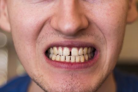 yellow teeth: man showing his teeth