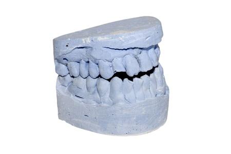 acrylic denture (False teeth) isolated on white photo