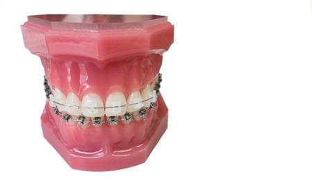 Close up of braces model isolated on white background