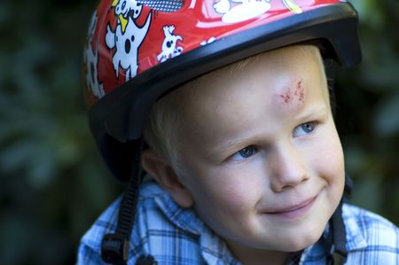 This boy was trying to bike for the first time, and ended up with his head on the streets... If only he had used his helmet! Stock Photo