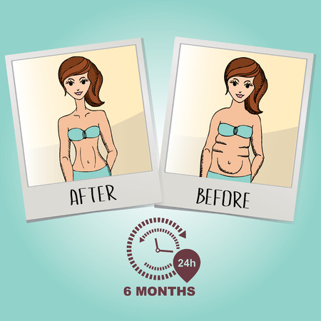 before: Before and after, fat girl and slim girl. Vector illustration.