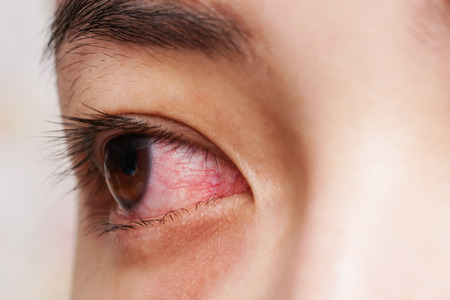 Red eye of woman , conjunctivitis eye or after cry Stockfoto