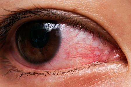 여성의 적목, 결막염의 눈 또는 울부 짖음