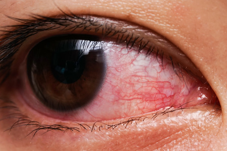 Red eye of woman , conjunctivitis eye or after cry Фото со стока
