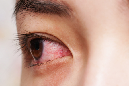 Red eye of woman , conjunctivitis eye or after cry Stock Photo