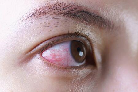 Rotes blutunterlaufenes Auge der Frau, gereizt oder infiziert, Augenbindehautentzündung oder nach Schreien.