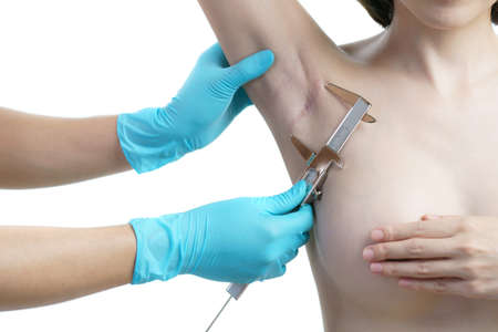 Doctor hand measurement keloids or scar on the armpit after breast surgery with caliper, breast implant surgery concept. Archivio Fotografico
