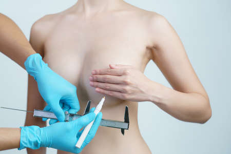 Doctor hand drawing lines and measurement woman breast with caliper, breast implant surgery concept.
