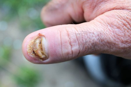 swollen: swollen finger without fingernail