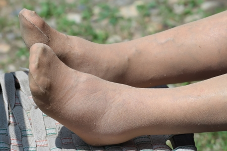 woman legs: swollen feet of a Senior woman